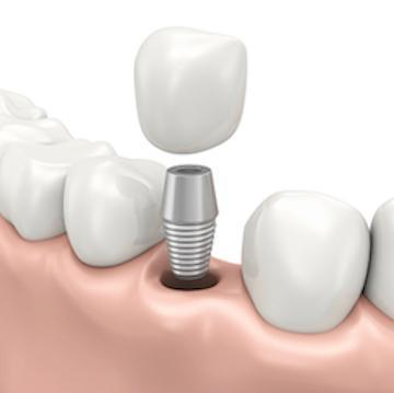 Illustration of dental implant | Dentist Charlotte NC