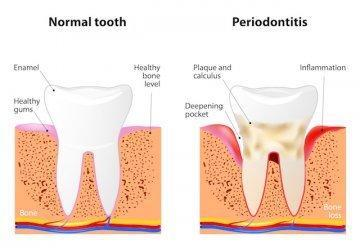 Diagram of stages of gum disease | Dentist 28210