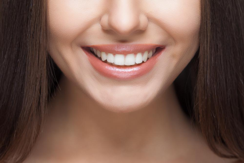 dental bridge for tooth replacement | charlotte nc