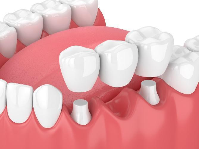 dental bridges diagram | charlotte nc