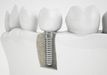 Dental Implant | Implants Charlotte, NC