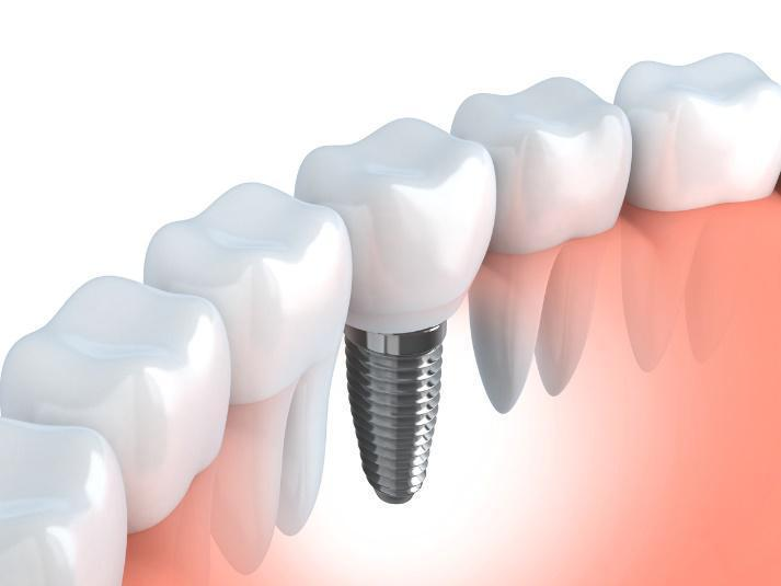dental implant diagram | southpark nc