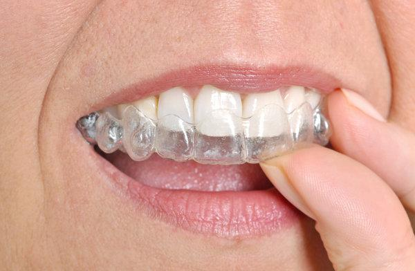 Invisalign clear aligners | southpark nc