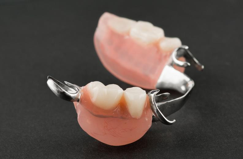 partial dentures charlotte nc