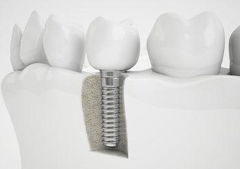 Dental Implant Example | Dental Implants Charlotte, NC