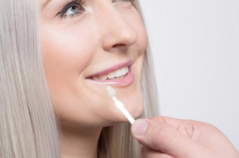 Woman With Veneer | Porcelain Veneers
