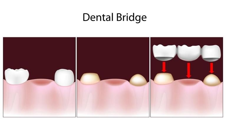 dental bridge image | charlotte nc