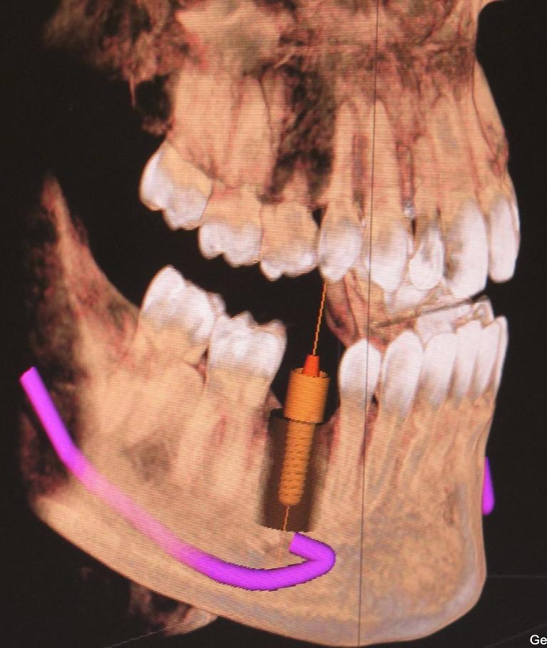 Computer Guided Implants | Gentry Dental