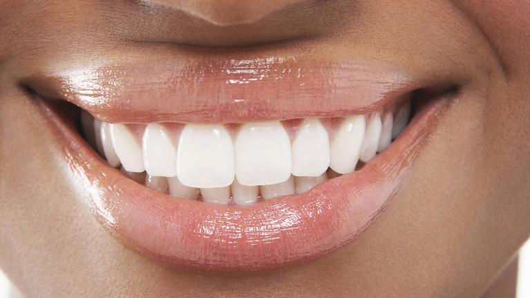 Benefits from Dental Veneers | Gentry Dental