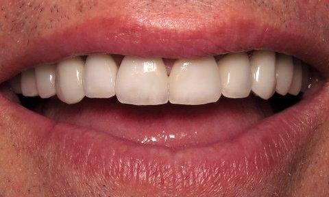Replacement Veneers in Charlotte, NC