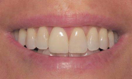 Natural Dental Implant and Crown Placement in Charlotte, NC