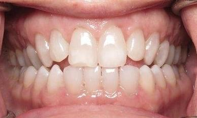 KöR Teeth Whitening after image | southpark NC