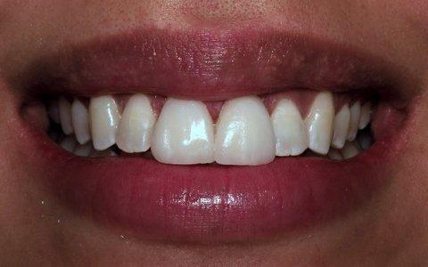 Cracked Front Teeth Fixed With Veneers | Gentry Dental Charlotte NC