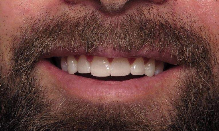 Dental Veneers Before & After Image | Charlotte NC Dentist