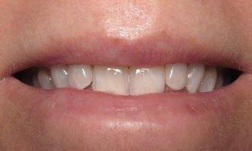 Teeth Whitening After Image | Charlotte NC Dentist