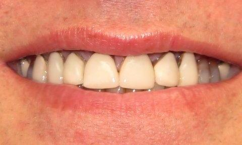 Dated Veneers Before Image | Charlotte NC Dentist