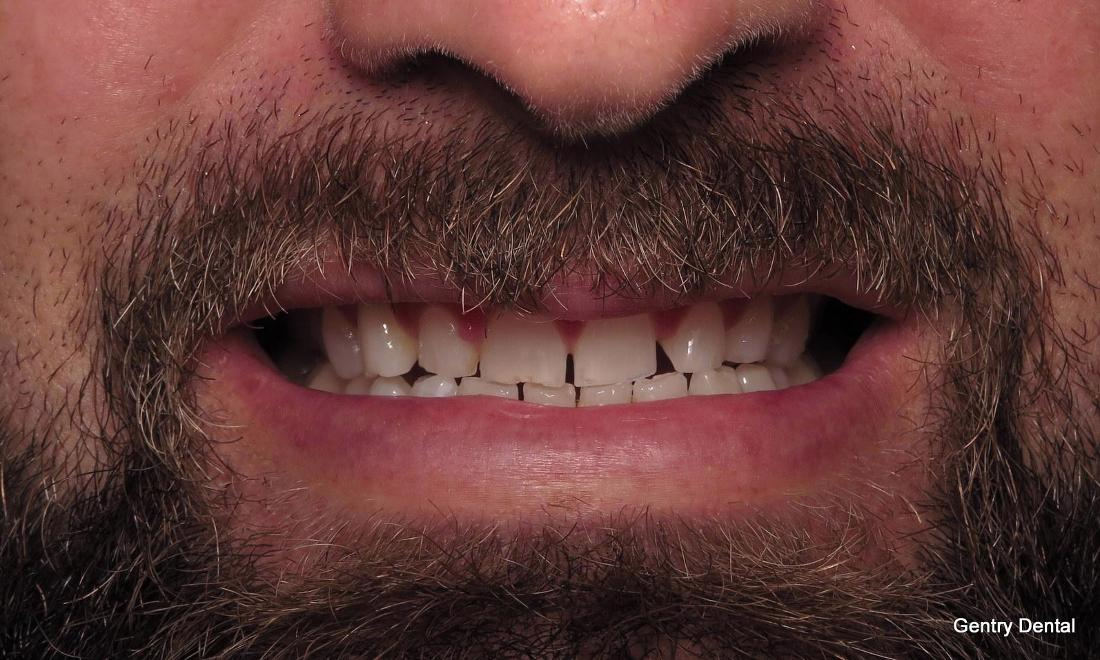 Dental Veneers Before Image | Charlotte NC Dentist