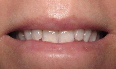 before professional whitening | southpark NC dentist