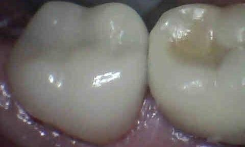 Cracked-Tooth-and-Crown-After-Image