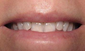 K-R-Teeth-Whitening-in-Barclay-Downs-NC-After-Image