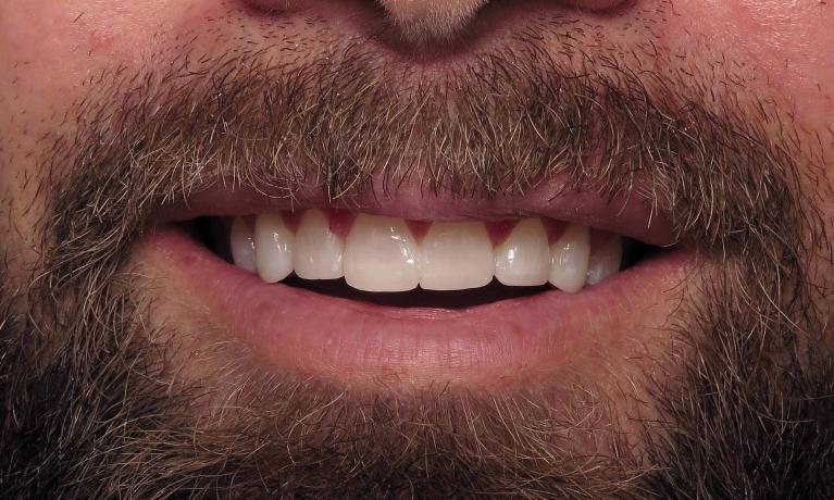 lower teeth veneers charlotte north carolina dentist gentry dental smile gallery
