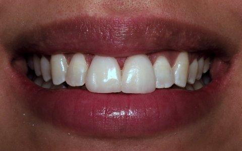 Beautiful-Dental-Veneers-in-Barclay-Downs-NC-After-Image