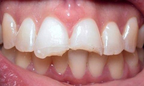 Beautiful-Dental-Veneers-in-Barclay-Downs-NC-Before-Image