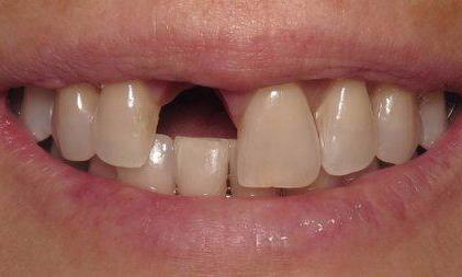 Natural-Dental-Implant-and-Crown-Placement-in-Charlotte-NC-Before-Image