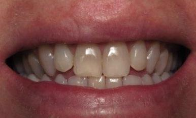 Teeth Whitening Before Image | Charlotte NC Dentist