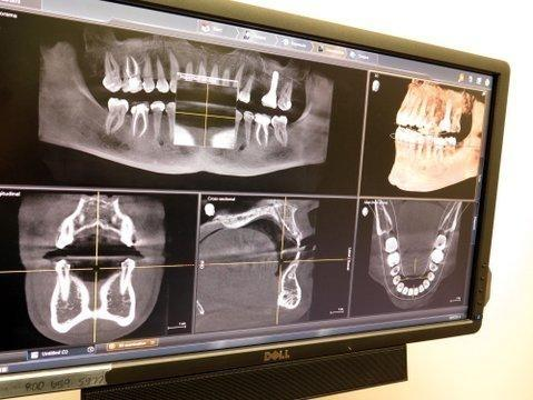 Digital X-Rays | Gentry Dental Charlotte NC
